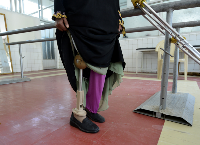 A victim of a landmine tries out a prosthetic limb. Pope Francis is urging international action to rid the world of landmines, which, he said, prolong war and nurture fear. (CNS photo/Yahya Arhab, EPA)