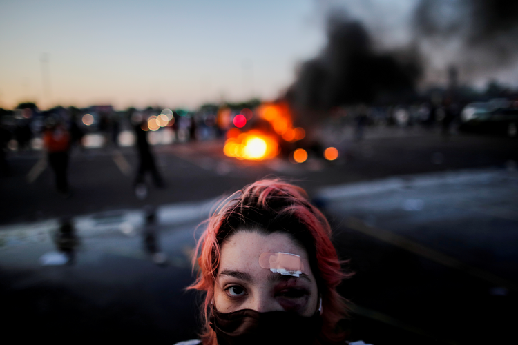 achel Perez of Minneapolis is pictured May 28, 2020, with injuries sustained from rubber bullets during protests while standing a distance from a burning vehicle at the parking lot of a Target store. (CNS photo/Carlos Barria, Reuters)