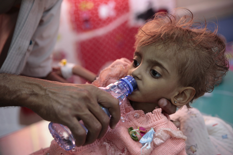 A father gives water to his malnourished daughter at a feeding center in a hospital in Hodeida, Yemen, on Sept. 27. (AP Photo/Hani Mohammed, File)
