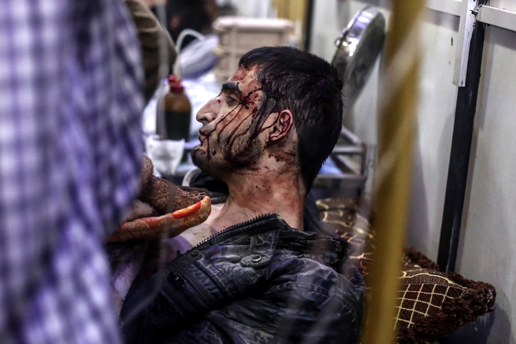 An injured man receives treatment inside a field hospital in Douma, Syria, after April 3 airstrikes(CNS photo/Mohammed Badra, EPA).