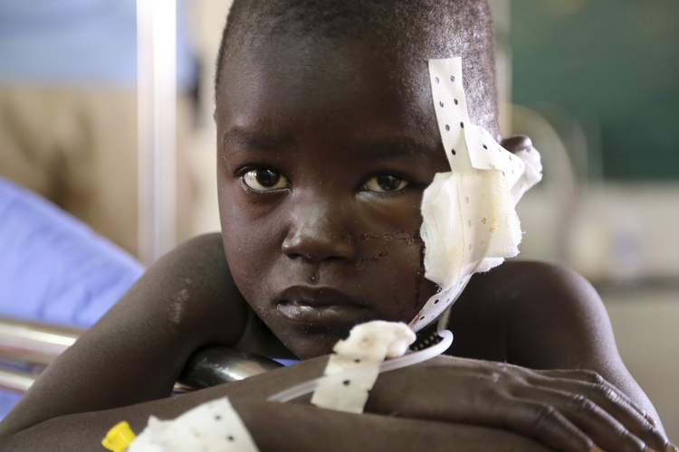 A young victim of a clash near Juba