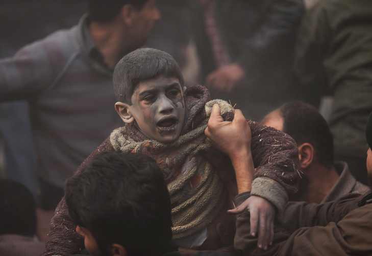 A wounded boy after an air strike over Damascus