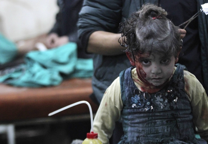 An injured girl waits for treatment in a field hospital after what activists said was an airstrike by forces loyal to Syrian President Bashar Assad in Damascus Jan. 28. (CNS photo/Mohammed Badra, Reuters)