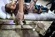 "An injured child receives medical attention after a bombing March 4 in Douma, Syria. Cardinal Mario Zenari, the apostolic nuncio in Syria, said ""I have never seen so much violence as in Syria."" In remarks March 9, he likened the situation to the 1994 Rwandan genocide. (CNS photo/Mohammed Badra, EPA)"