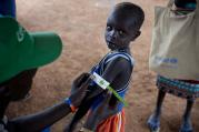 A young boy has his arm measured in October 2016 to see if he is suffering from malnutrition during a nutritional assessment at an emergency medical facility supported by UNICEF in Kuach, on the road to Leer, in South Sudan. Famine has been declared Monday, Feb. 20, 2017 in two counties of South Sudan. (Kate Holt/UNICEF via AP)